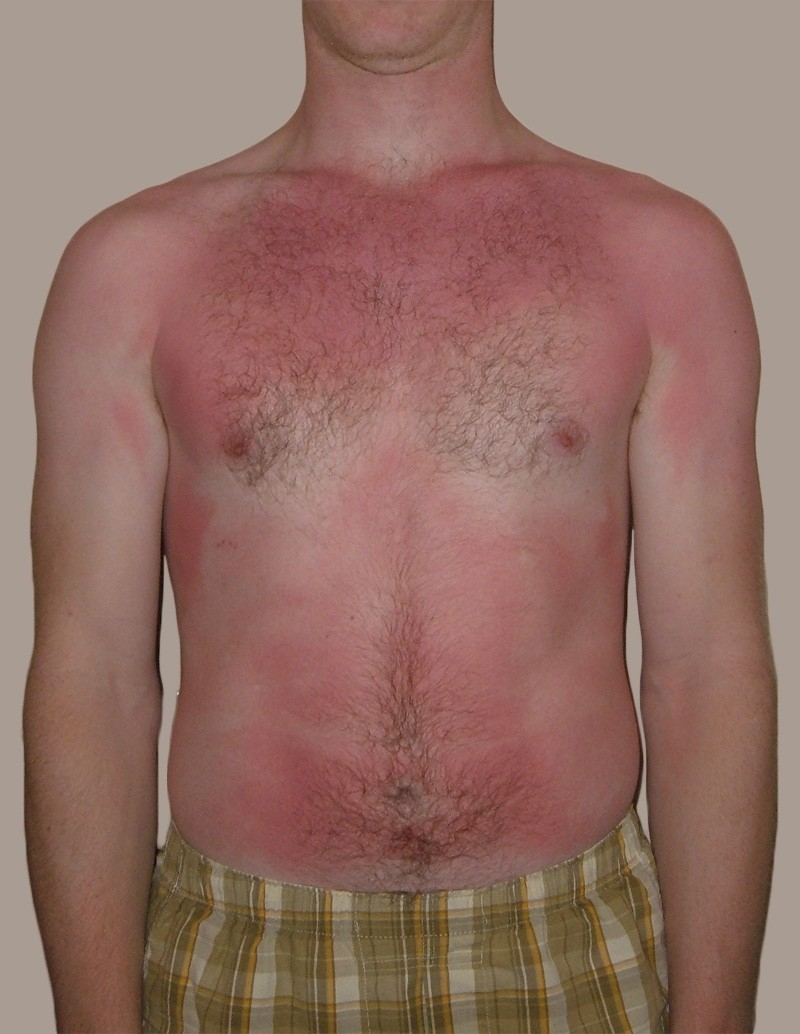 First- and second-degree sunburn